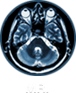 MRI - Colmar Imaging Center